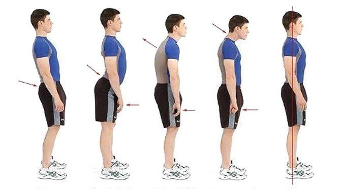 cadenas miofasciales postura